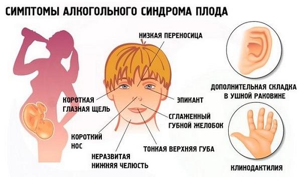 Симптомы ФАС