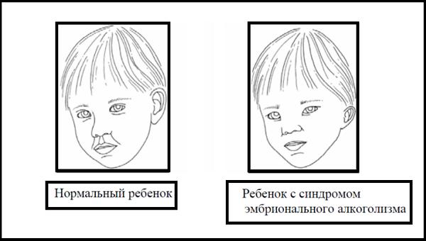 Фетальный алкогольный синдром (ФАС)