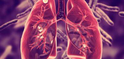 Легкие человека с туберкулезом
