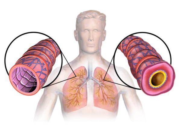 Обструкция дыхательных путей